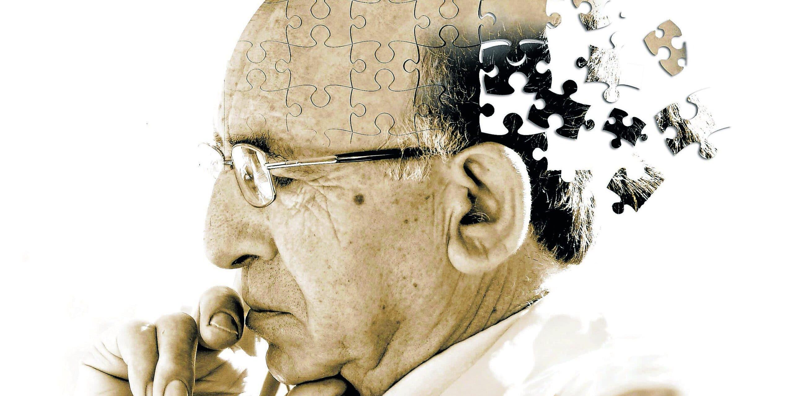alzheimer-causas-consecuencias-edad